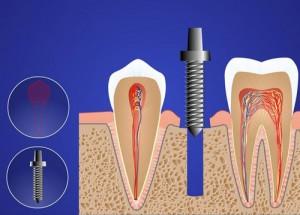 udalenie-implantata-300x215 В каких случаях может потребоваться имплантация зубов